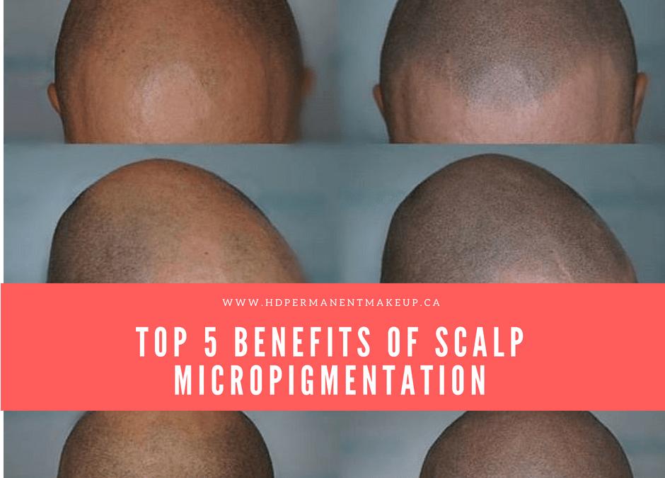 Top 5 Benefits of Scalp Micropigmentation