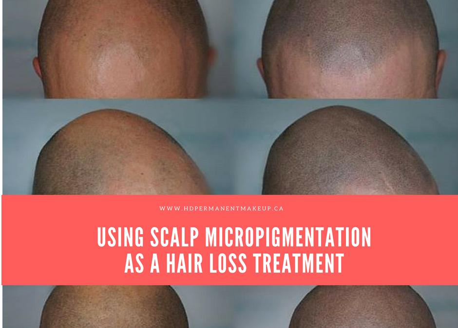 Using Scalp Micropigmentation As a Hair Loss Treatment