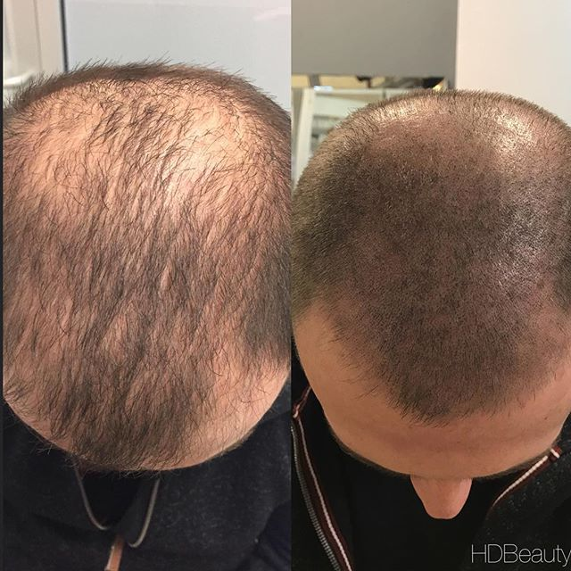 Six Things You Need to Know about Scalp Micropigmentation