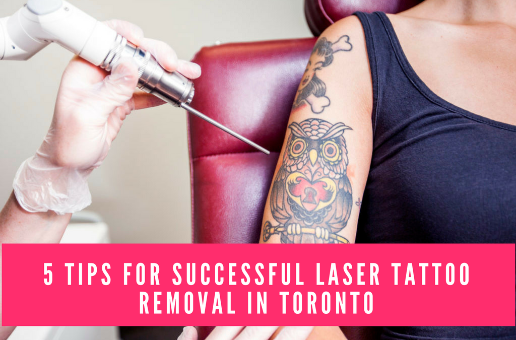 5 Tips for Successful Laser Tattoo Removal in Toronto