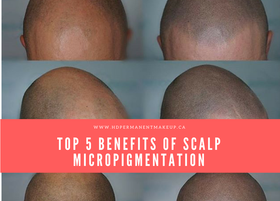 Top 5 Benefits of Scalp Micropigmentation