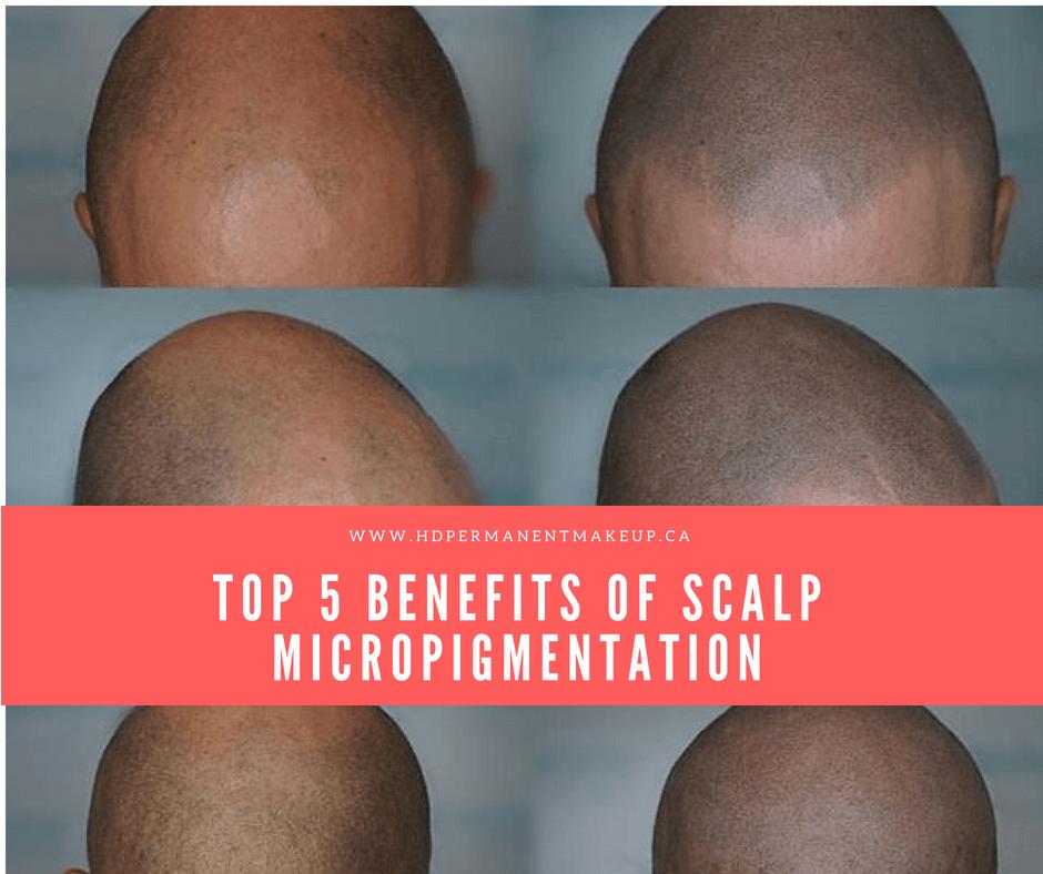 Scalp Micropigmentation by HD Beauty