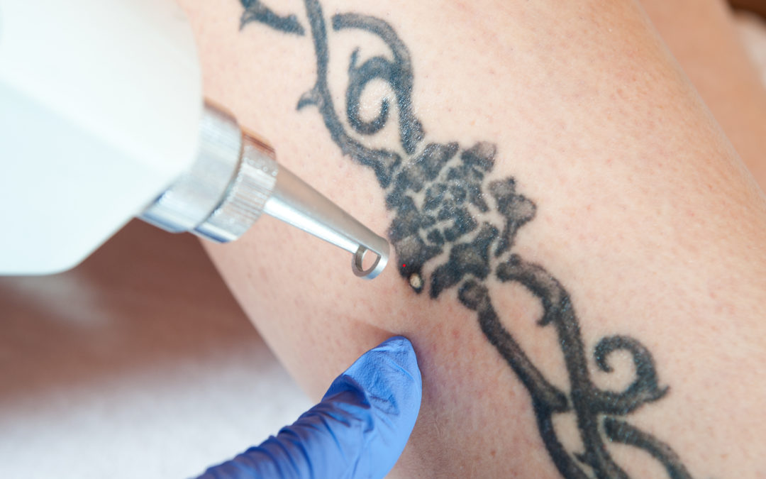 Top 5 Common Reasons for Tattoo Removal
